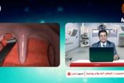 الشخير وتوقف التنفس أثناء النوم (الأسباب والعلاج)   الدكتور حميد الشمري في المنهاج الطبي